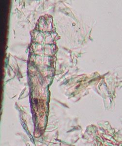 Demodex,демодекоза,саркоптоза,отодектес