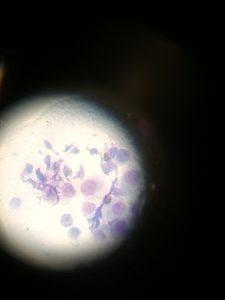 histeocitoma